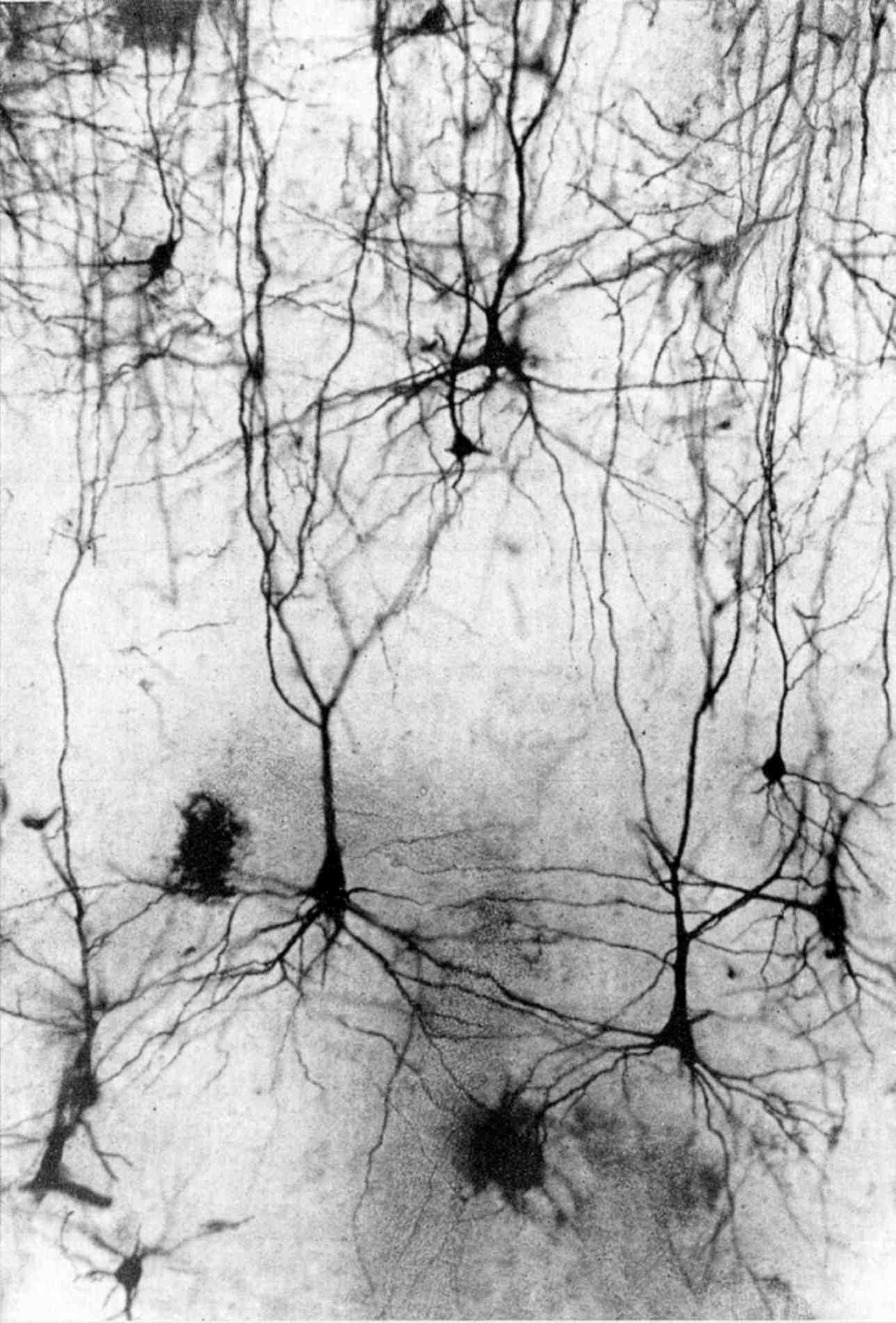 Рис. 1. Дендрион парамидного нейрона 5 слоя сенсомоторной коры кошки, метод Гольджи, ув. об. 9, ок. 12,5. Микрофото Н. С. Косицина.